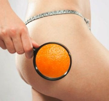 The Keys to Get Rid of Cellulite Once and for all